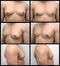 Los Angeles Gynecomastia Surgery Male Breast Reduction